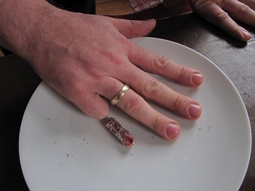 wurstfinger (keine entz�ndung!)
